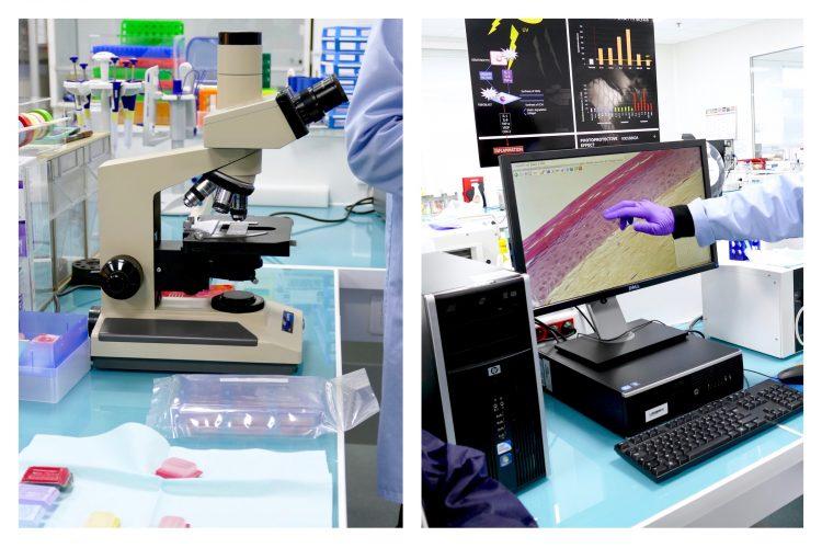 episkin analyseras för olika mätningar