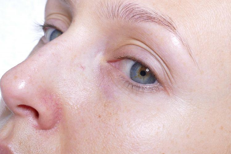 röd hud runt näsan