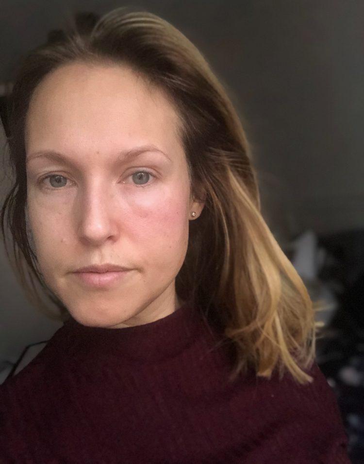allergisk reaktion ansiktskräm