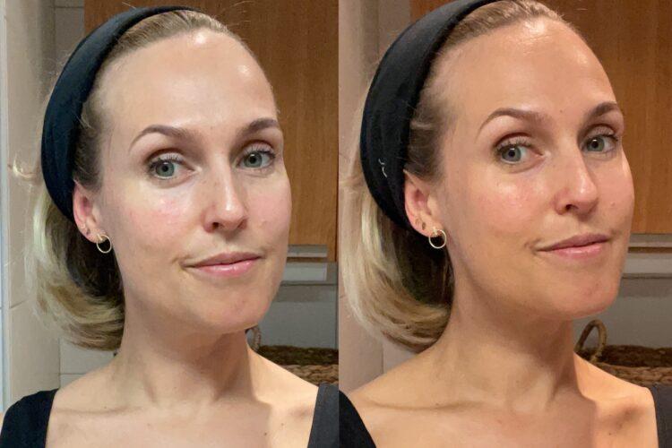 Före och efter tanrevel